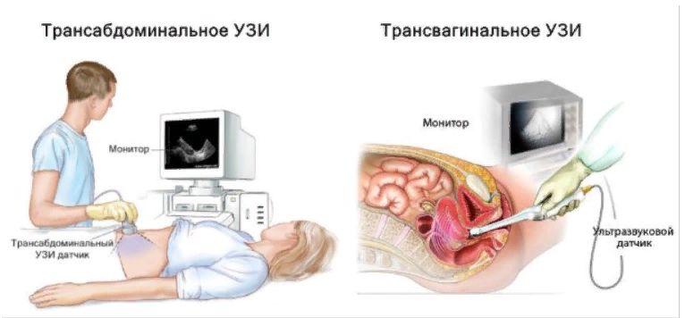Види гінекологічного УЗД у Вінниці в центрі «ВінАльфа-Мед»
