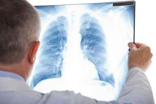 Лікар розшифровує результати рентгену