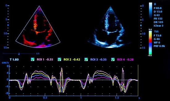 Результаты УЗИ сердца в ВинАльфа-Мед