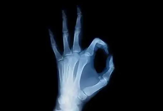 Рентген левой кисти на оборудовании Винницкого центра ВинАльфа-Мед