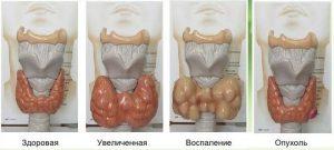 patologiya-rus.jpg.pagespeed_.ce_.VxG76dvV02_